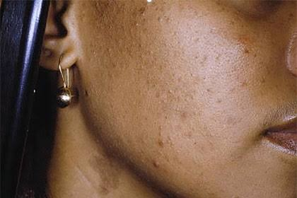 natural remedies for your dark spots